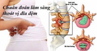 Chẩn đoán lâm sàng của thoát vị đĩa đệm